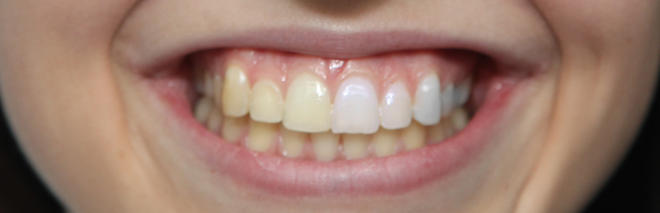 Zähne Nachwachsen